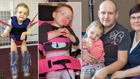 7 záchvatů denně, hrsti léků a postižení: Eliška (3) trpí vzácnou nemocí