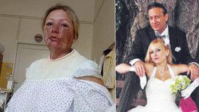 Markéta (40), kterou manžel polil vařící vodou: Útěk z nemocnice! Ukrývá se před tyranem