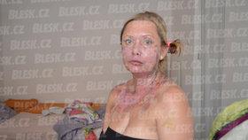 Manželem opařená Markéta (40) z Teplic poskytla Blesku exkluzivní rozhovor: Ta hrůza se stále vrací! Ve dne i v noci...