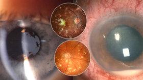 Haně (42) změnila život nemoc oka. Zrak ničí hlavně dětem a mladým lidem