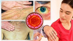 Na žloutenku každý rok zemře až milion lidí: Co byste měli vědět o nemoci špinavých rukou?