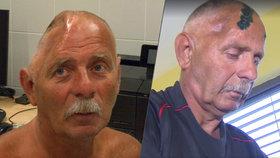 Petr z Bíliny žil 17 let bez kusu lebky: Zachránila ho unikátní operace