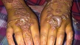 Tetovací hena jí zohyzdila obě ruce. Jak to dopadlo?