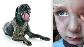 Na hradě u Trutnova zaútočil mastif na 10letého chlapce: Potrhal ho v obličeji