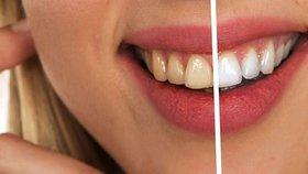Domácí bělení zubů v 21 minutách