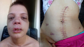 Sexuální otrokyni zmrzačili, znásilnili a donutili k prostituci: Jizvy má na těle i na duši