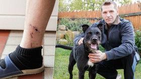 Stanislav (38) byl napaden psem: Krvácení zastavoval vlastními prsty!