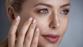 Pigmentové skvrny: Jak se jich zbavit na rukou i v obličeji?