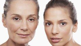 Chcete se zbavit bezbolestně vrásek i nevzhledného akné? Pak je tu pro vás chemický peeling