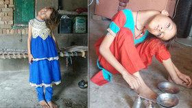 Dívka (9) žije v neustálých bolestech s ohnutým krkem. Má poškozenou páteř a svaly