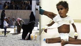 V Jemenu můžou zemřít miliony lidí. Hrozí největší hladomor na světě