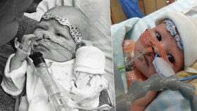 Chlapeček (5 týdnů) kvůli nemoci potřebuje nové srdce: Matka prosí všechny o pomoc