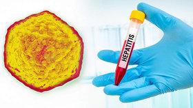 Epidemie žloutenky děsí Čechy. Jak se jí bránit a kdo nemá chodit na očkování?