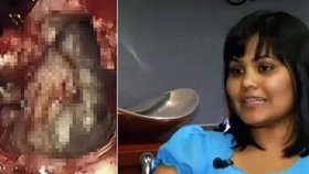 Yamini Karanamové z Indiany v USA odstranili lékaři velký nádor z hlavy.