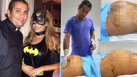 Zvrhlý chirurg, který se fotil s Verešovou: Řezání zaživa, špína a smrad, popsala své zkušenosti zděšená pacientka