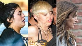 To tedy není hezký pohled: Tyhle celebrity trápí druhá i třetí brada!