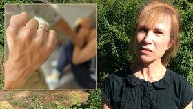"""""""Monokly se nestačily hojit."""" Dagmar 9 let týral muž. Stát násilí přehlíží"""