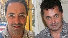 Martin Dejdar mění tvář i ve skutečnosti: Navštívil plastického chirurga!
