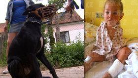 Pes pokousal holčičku i její mámu. Dítě lékařka uspala kvůli bolestem