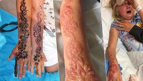 Holčičku (7) zohyzdilo tetování z henny. Rozmar z dovolené se jí zažral do kůže