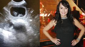 Heidi Janků šokovala fotkou ultrazvuku! Doufá v chlapečka!