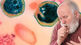 Plicní chlamydie: Zákeřná infekce napadá plíce a může způsobit roztroušenou sklerózu