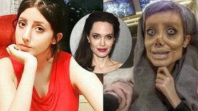 Šílená proměna dívky (19) posedlé Angelinou Jolie: Podívejte se, jak vypadala před 50 plastikami!