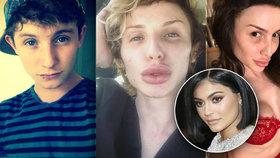 Mladík (23) chce vypadat jako Kardashianka: Za plastiky dal už 1,5 milionu!