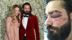 Brutální útok na kadeřníka celebrit Zapoměla: Vymlácené zuby, roztržené obočí a otřes