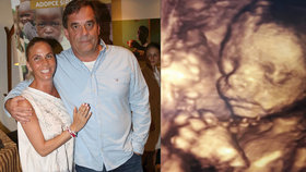 Miroslav Etzler se pochlubil ultrazvukem! Dočká se druhého syna?