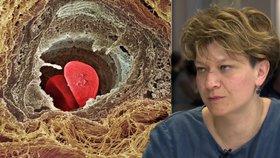 """Rakovina prsu v poslední fázi je tabu, říká odbornice. """"Neumíme o tom otevřeně mluvit"""""""