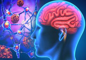 Vědci našli cestu k vymazání vzpomínek z mozku. Jako v Mužích v černém