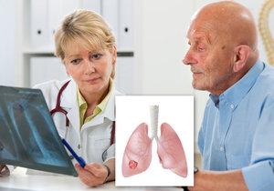 Na rakovinu plic umírá 8 z 10 Čechů.