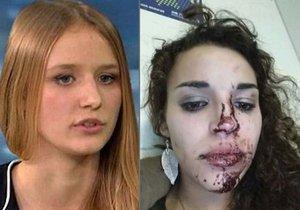 Napadené ženy promluvily.