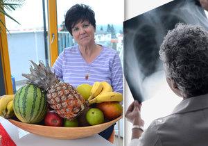 Lékařka paní Marcely prý neviděla původní rentgen.