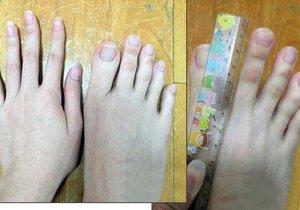 Číňanka se pyšní bizarní anomálií! Prsty na nohou má dlouhé 5 centimetrů!
