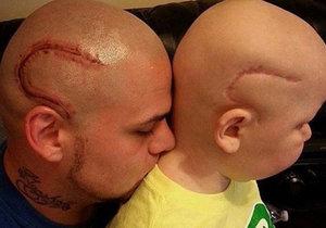 Otec si nechal vytetovat na hlavu jizvu, kterou má jeho syn po odstranění nádoru z mozku.
