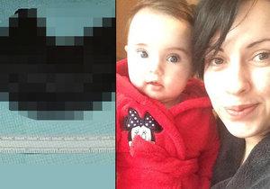 Sophie Cox málem umřela, protože pojídala vlastní vlasy.