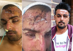 Brutální útok kyselinou sírovou: Mladý manažer skončil doživotně zohyzděný