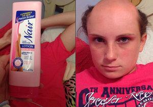 Dívce zbyla po aplikaci depilačního krému na hlavě obří pleš.