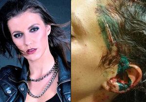 Herečka a zpěvačka Veronika Zelníčková promluvila o brutálním napadení.