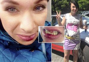 Týraná reportérka TV Nova Bára Divišová se musí postavit tváří tvář tyranovi, který jí vyrazil zuby!