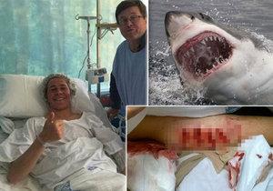 Cooper Allen byl ošklivě pokousán žralokem.