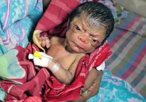 V Bangladéši se narodilo miminko s vráskami. Trpí nejspíš progerií.