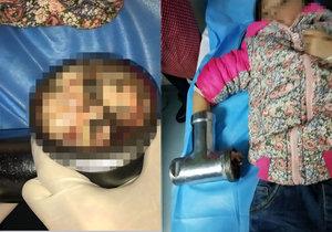 Dívka (6) si v mlýnku na maso rozdrtila prsty.