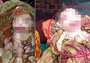 V Indii se narodilo dítě se vzácnou nemocí, kvůli které nemá téměř žádnou kůži.