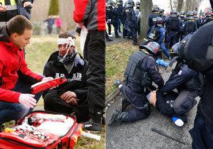 Výsledek obrázku pro foto policie zraněné rowdies