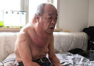 Číňan Wang Č'-siang musí žít s obřím krkem kvůli chybě lékařů.