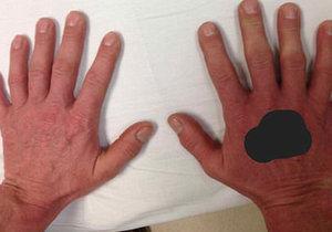 Muž má na každé ruce šest prstů, narodil se s vrozenou vadou polydaktylií.