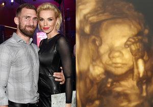Hana a André Reindest ukázali 3D ultrazvuk jejich prvního miminka.